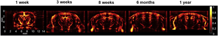 Cerebral blood volume (CBV) maps of 1-w-old to >1-y-old mice